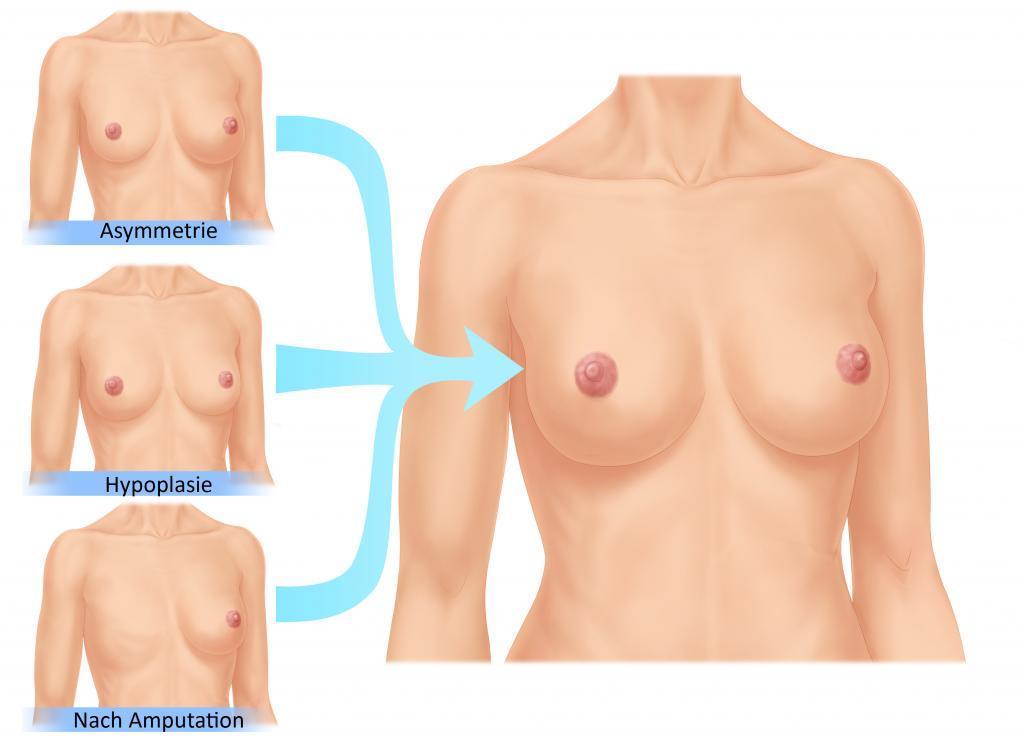 Brustvergößerung Gründe