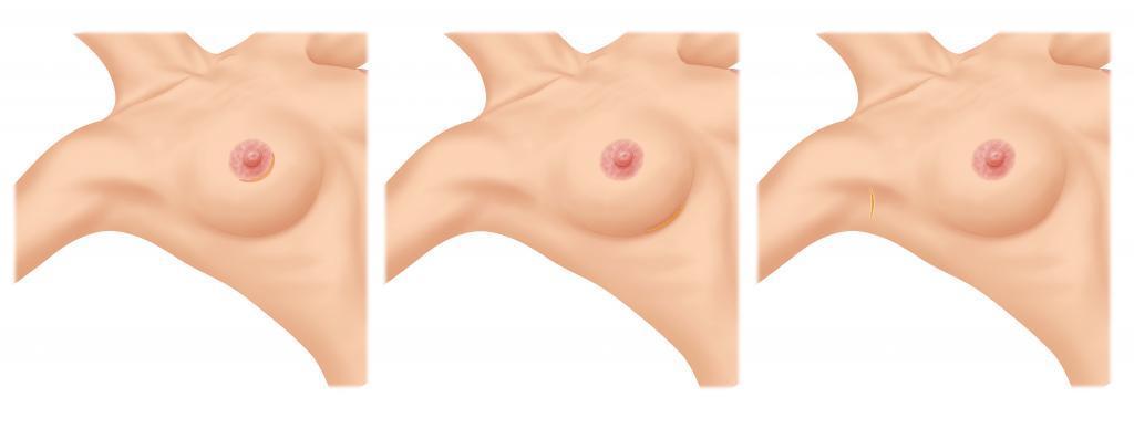 Zugangswege für Brustimplantate